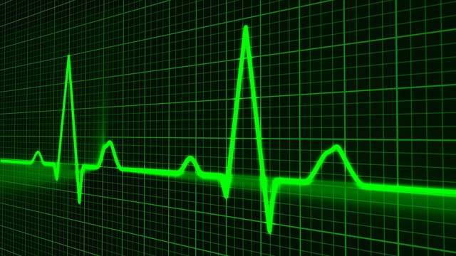 Life Insurance After Heart Attack, Heart Monitor Readout Picture